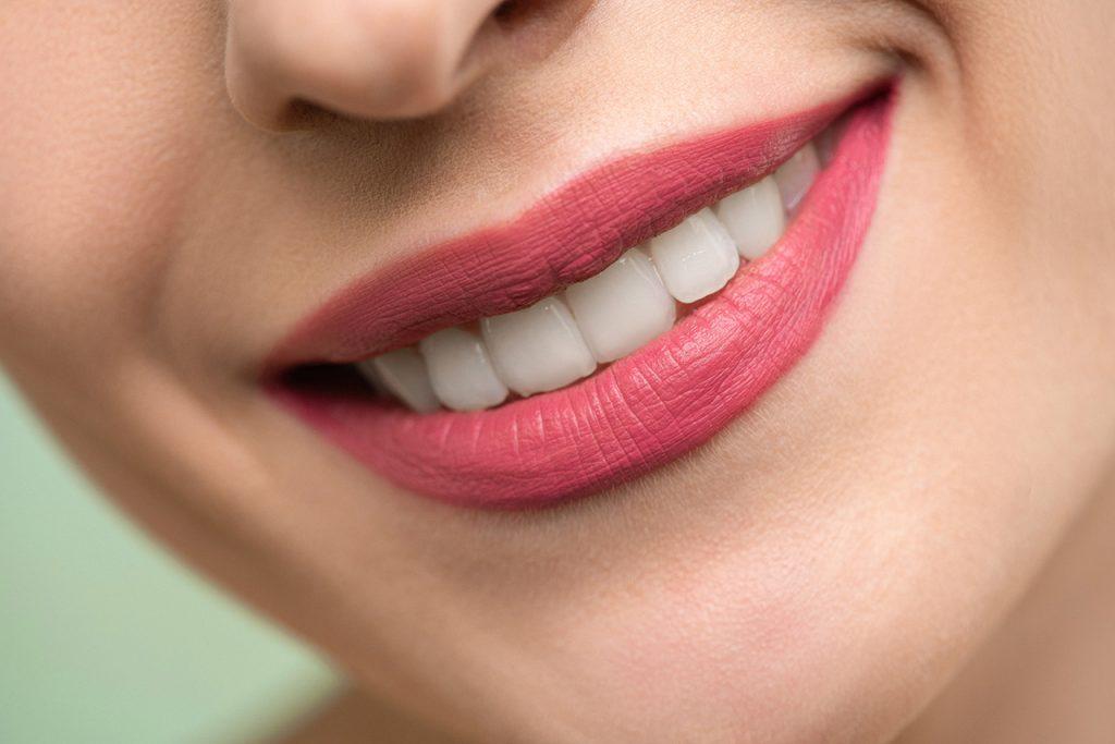 dr-smile-nakladki-ortodontyczne